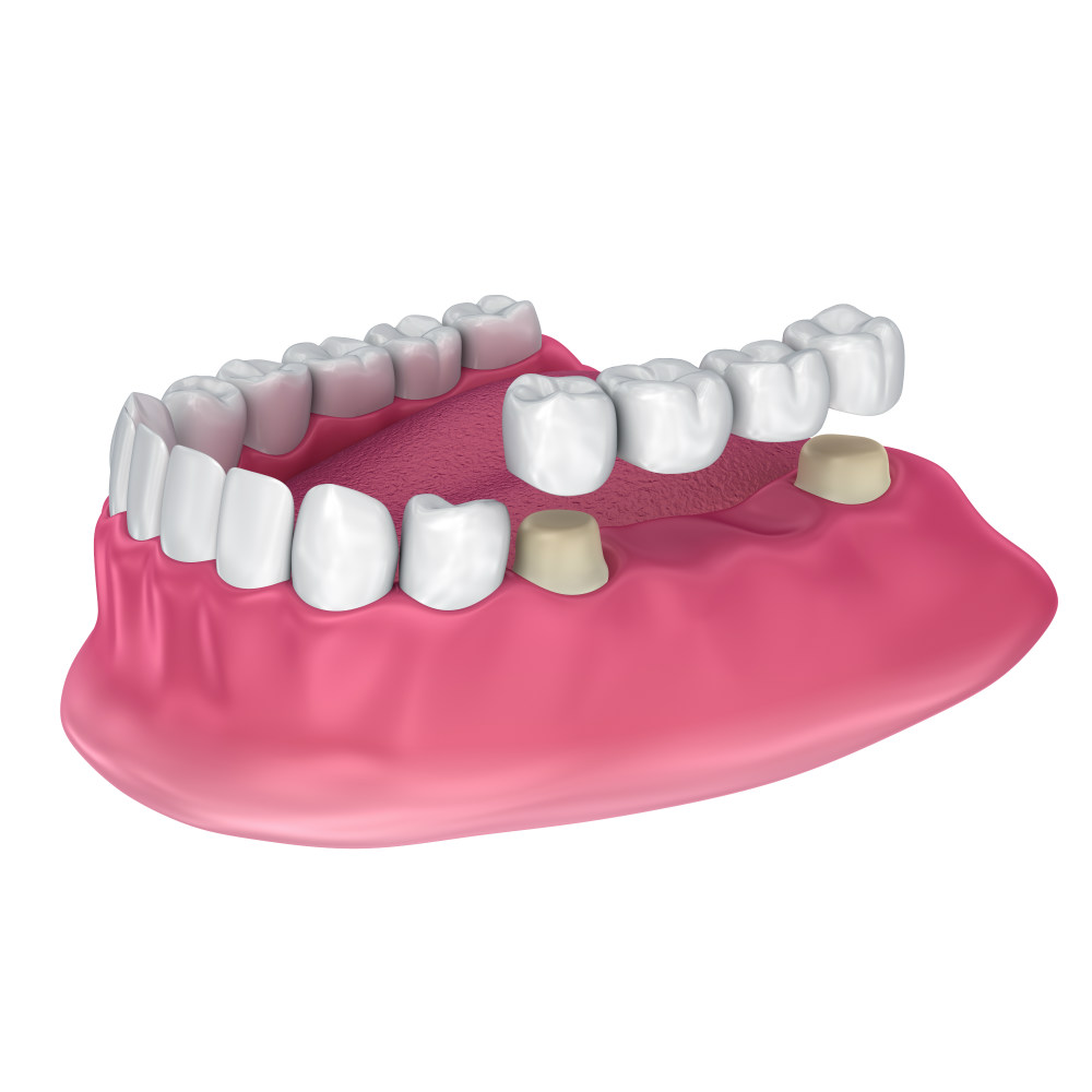 Мосты на импланты зубов в стоматологии Апекс-Д, цены в Москве