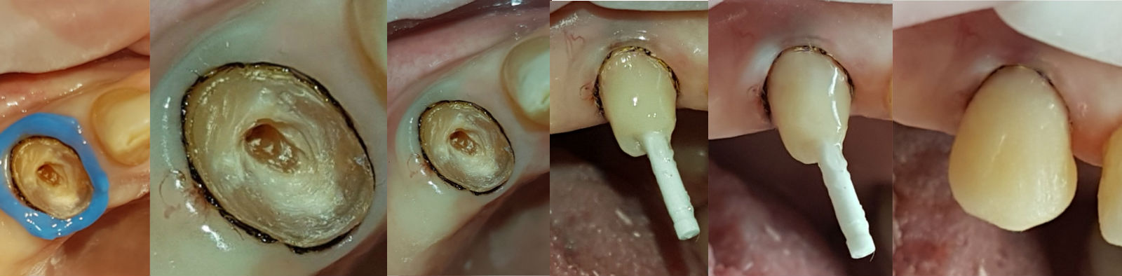 Наращивание сломанного зуба методом скульптурирования культевой части