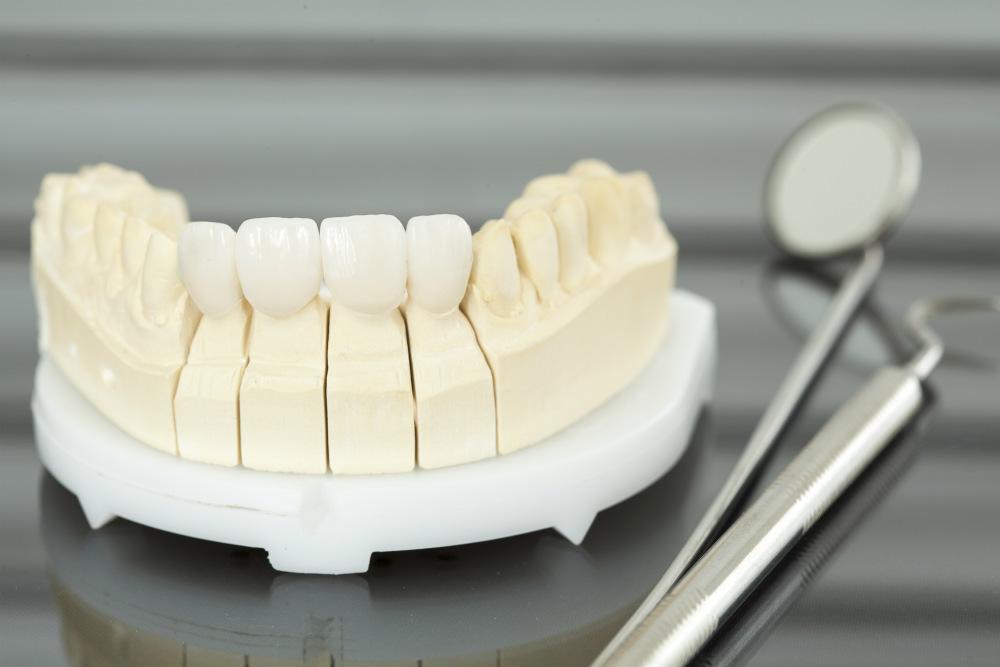 Установка коронок на передние зубы
