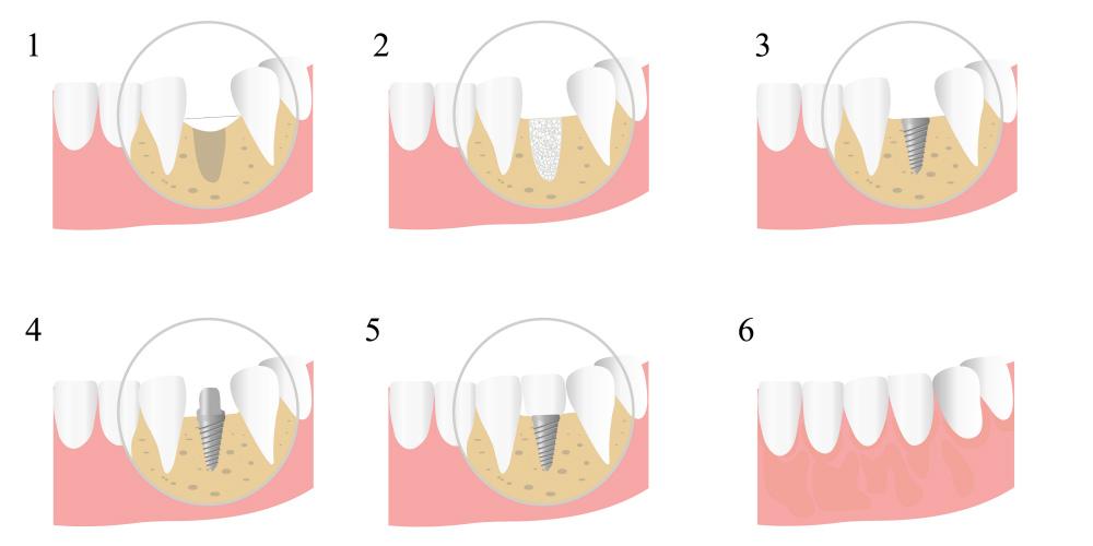 Наращивание костной ткани одномоментно с имплантацией