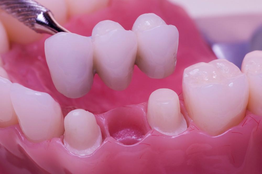 Мосты на зубы